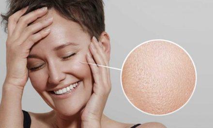 Tem a pele oleosa? Cinco dicas para cuidar durante o verão